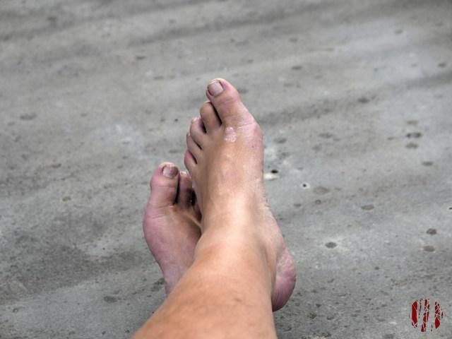 Photograph of battered feet of photographer taken from a seated position